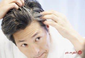درمان مو سفید با طب سنتی