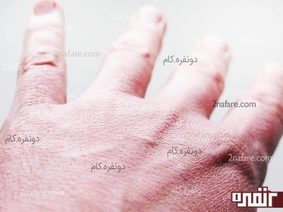 پوست خشک و زمستان