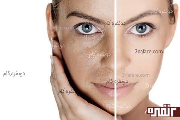 زیبایی پوست