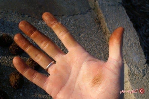 لکه ی گردو روی دست ها