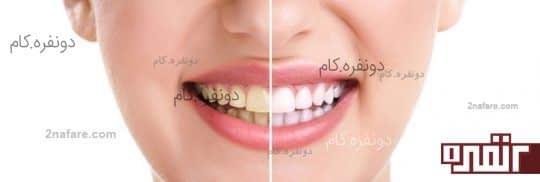 راه های سفید کردن دندان ها