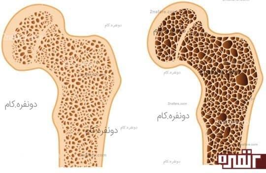 زیاد شدن حفره های استخوان