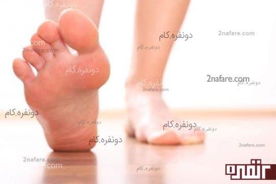 درمان ترک پا با استفاده از موز