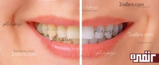 با استفاده از پوست موز دندانهایی سفید داشته باشید