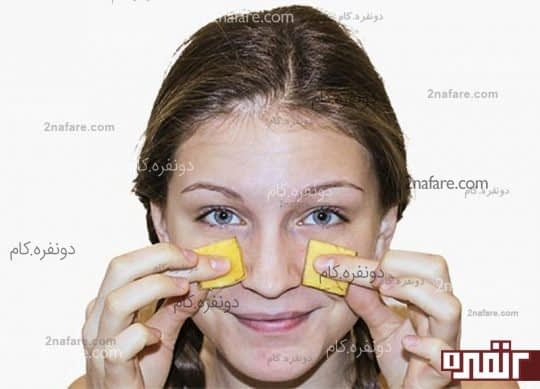 برای درمان جوش های خود از پوست موز استفاده کنید