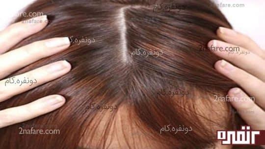پوست آسیب دیده ی سر باعث توقف رشد موها میشود