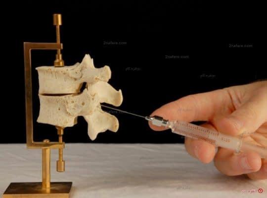 تزریق نخاعی و زایمان اپیدورال