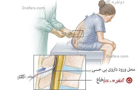 تزریق نخاعی