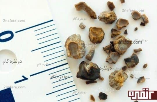 جلوگیری از سنگ کلیه و عفونت مثانه
