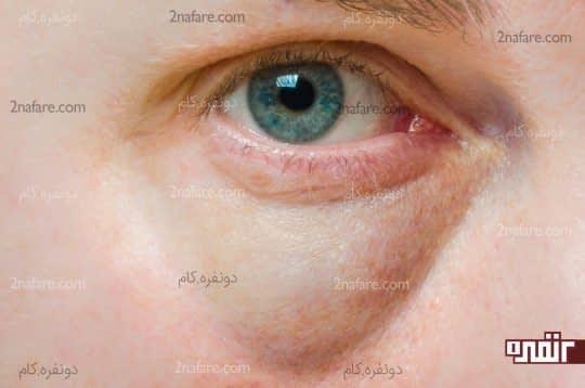 چشم هایی پف آلود
