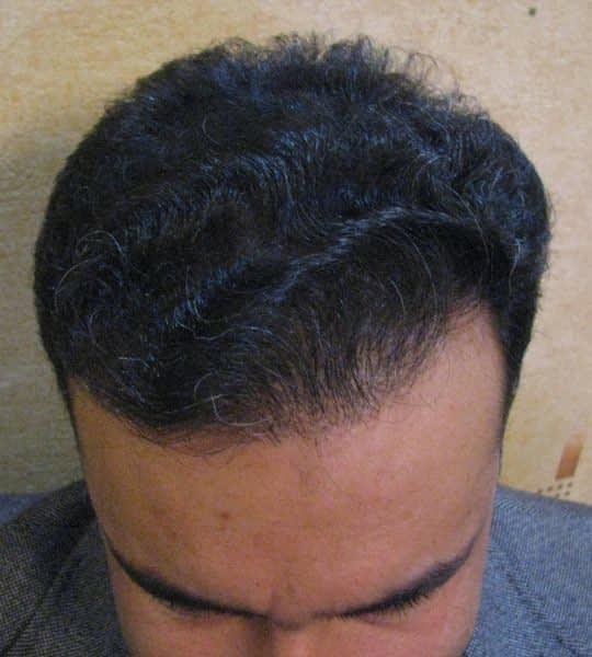 بعد از کاشت مو