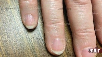 خط های عمودی روی ناخن