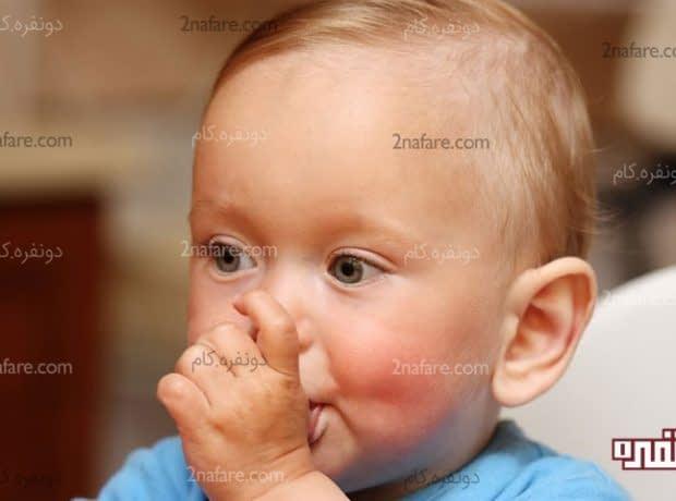 مکیدن انگشت در کودکان و روش های جلوگیری از آن