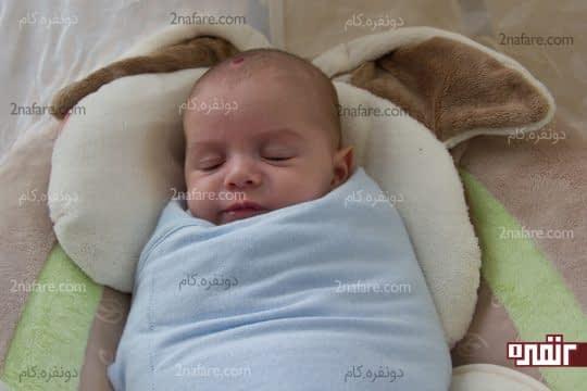 پهلو درد در نوزاد