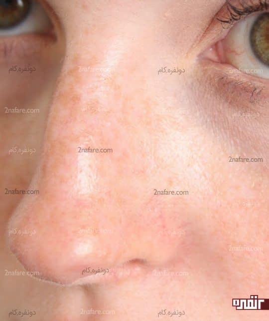 درمان خانگی برای از بین بردن لکه های تیره روی بینی