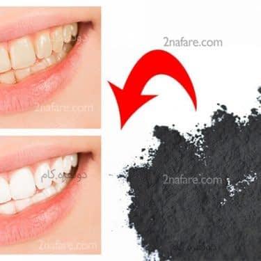 استفاده از پودر زغال برای سفید شدن دندان