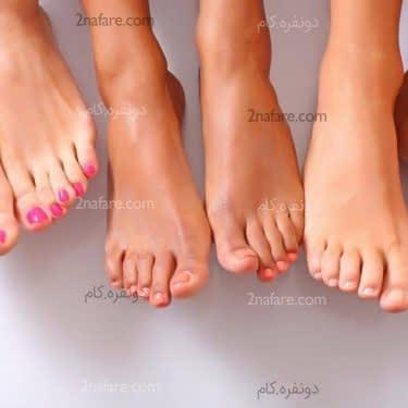 درمان طب سنتی برای میخچه پا