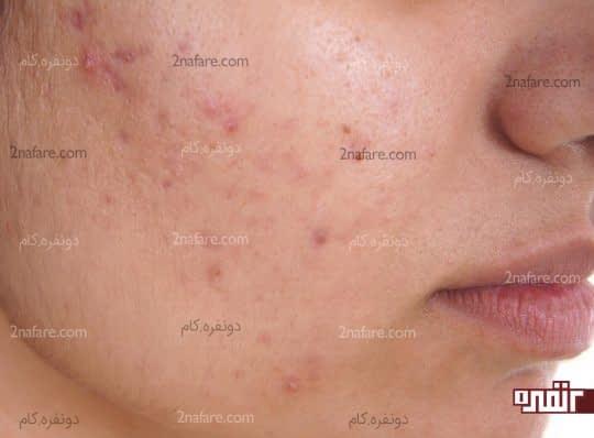 درمانی مفید برای اختلالات پوستی