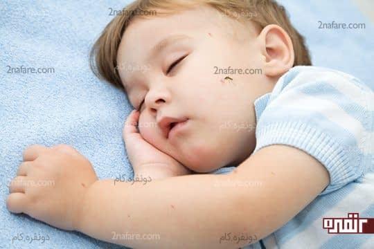 گزیدگی پشه در کودکان و روش های درمان آن