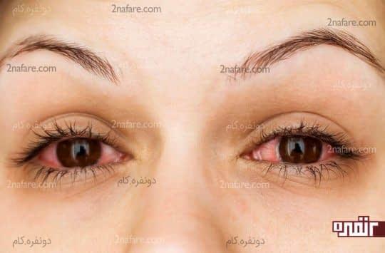 درمان خانگی برای برطرف کردن قرمزی چشم