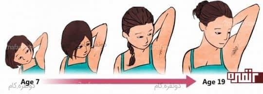 افزایش مو در دوران بلوغ دختران