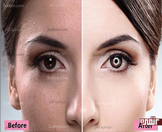 تاثیر نور مناسب عکاسی در نمایان شدن پوست