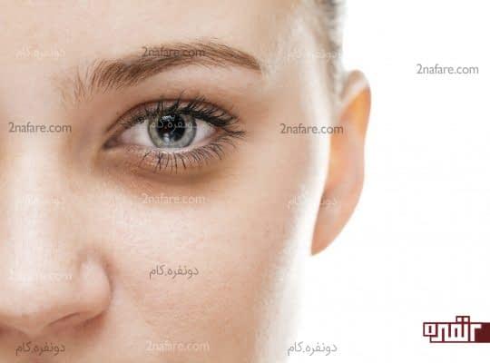 جلوگیری از سیاه شدن زیر چشم