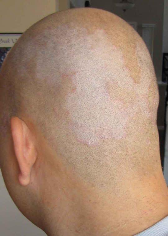 خشکی پوست سر
