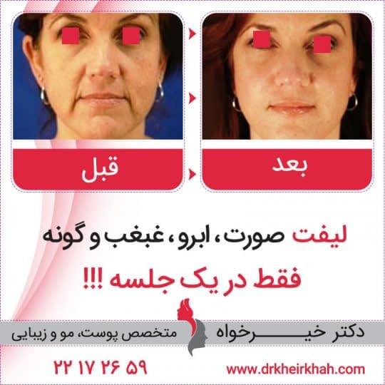 قبل و بعد از عمل