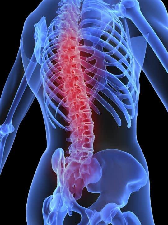 گودی کمر و درمان آن با ورزش