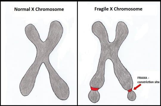 علل کاهش ذخایر تخمدان اختلالات کروموزوم ایکس