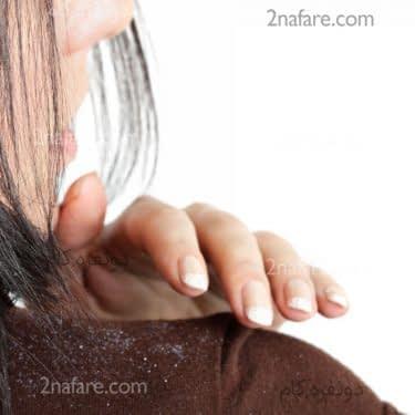 درمان شوره سر با روش های طبیعی