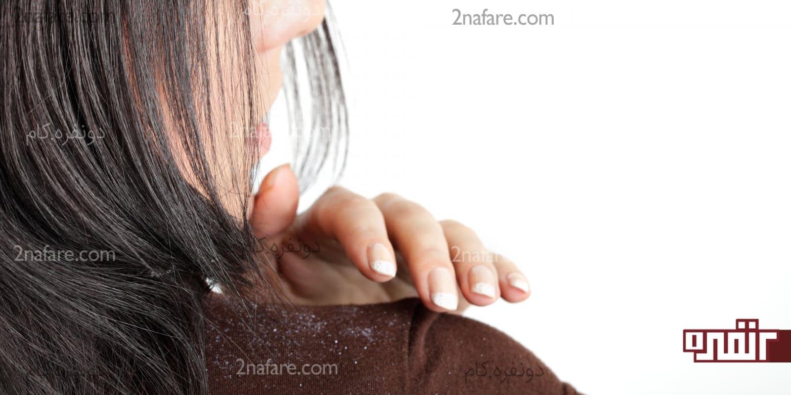درمان شوره سر با روش های خانگی و گیاهی