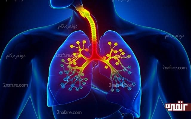 درمان عفونت ریه با 7 گیاه دارویی