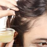 درمان ریزش مو با آب پیاز