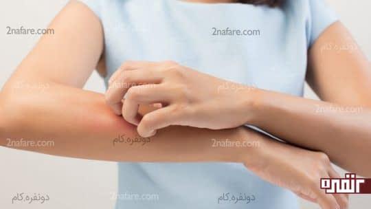 بهترین درمان های خانگی برای از بین بردن خارش نیش پشه