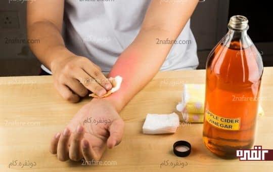 سرکه سیب عفونت ناشی از نیش پشه رو درمان میکنه