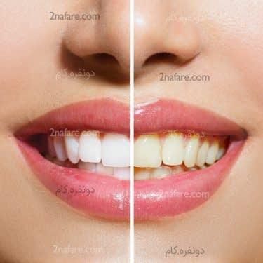 تاثیر رنگ دندان در سلامت دندان