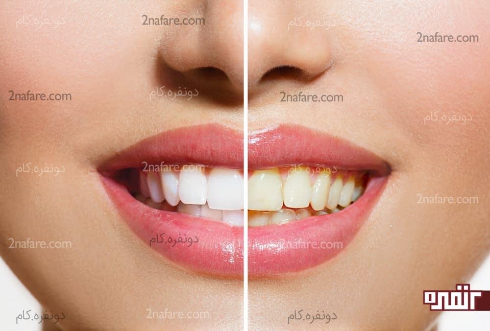 آیا دندان سفید به معنای دندان سالم است؟
