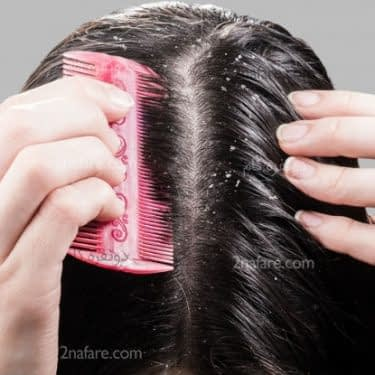 درمان های خانگی شوره سر
