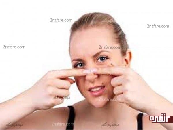 هیچ وقت جوش صورتتون رو دستکاری نکنین چون وضعیت رو بدتر میکنه