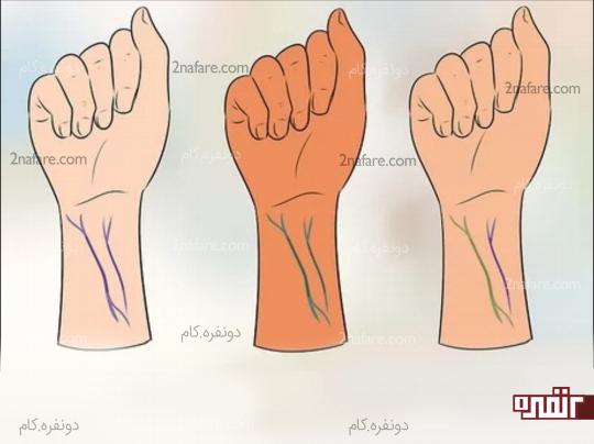 تشخیص رنگ پوست از روی رگ