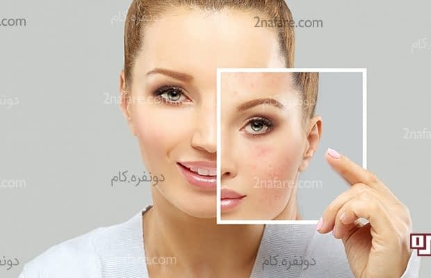 درمان اسکار صورت با روش های طبیعی