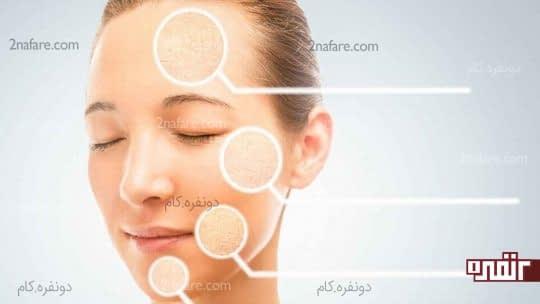 درمان خشکی پوست با ماسک سیب زمینی