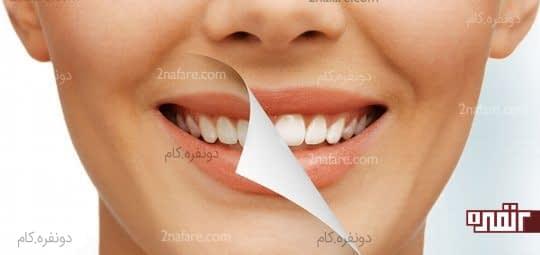 سفید کردن دندان ها با استفاده از جوش شیرین
