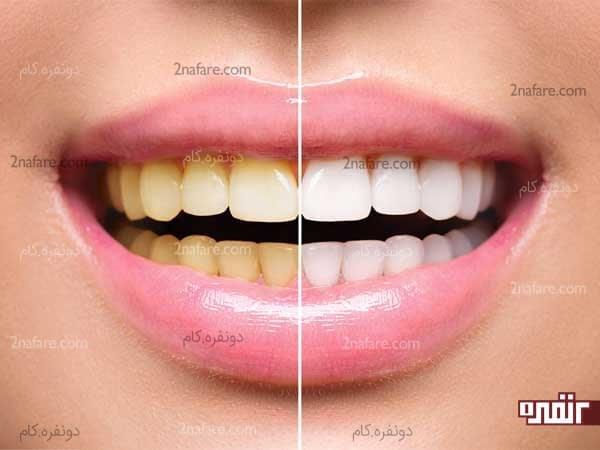 سفید کردن فوری دندان ها
