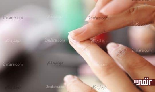 درمان لکه های سفید روی ناخن