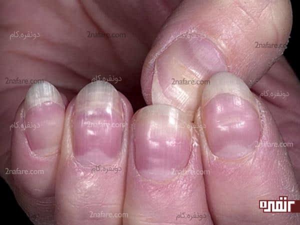 از بین بردن سفیدی روی ناخون ها