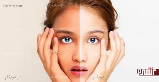 عاملی برای کدر شدن پوست صورت