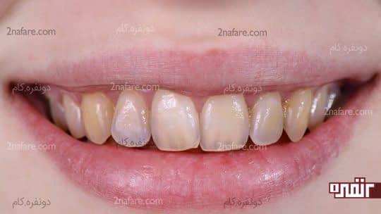 آسیب سرکه به مینای دندان